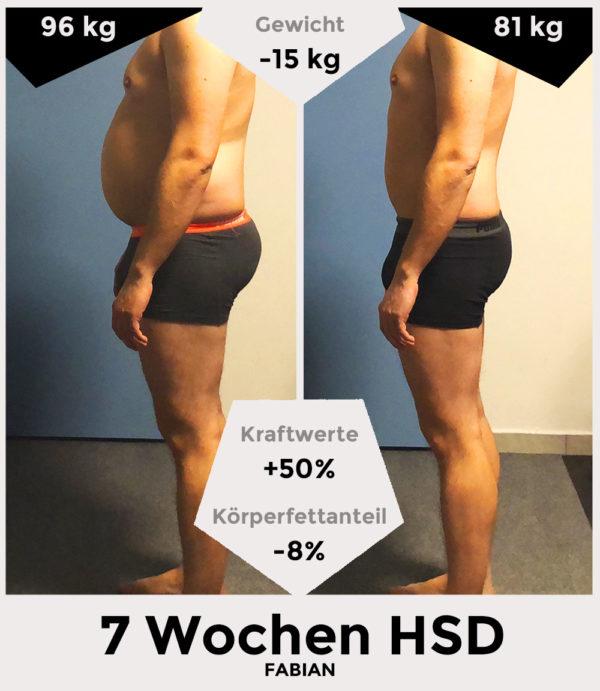Fabian vor und nach der HSD - seitlich