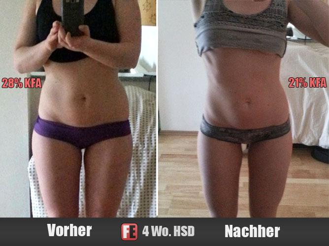 Sarah Vorher-Nachher